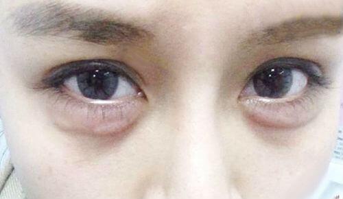 Có Nên Phẫu Thuật Bọng Mắt 4