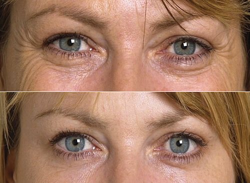 Có Nên Phẫu Thuật Bọng Mắt 3