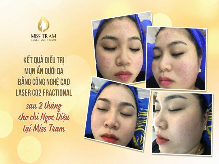 Results After 2 Months of Acne Fractional CO2 Laser Treatment for Ms Ngoc Dieu