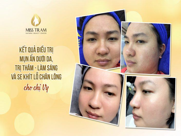 Out-of-Skin Acne Treatment, Intensive Treatment, Se Tightening Pores For Ms. Vy