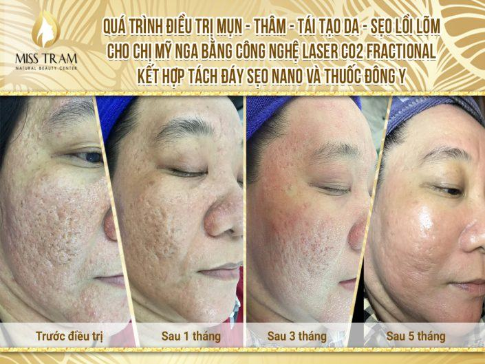 Acne Treatment, Skin Resurfacing With CO2 Fractional Laser Technology Combining Oriental Medicine & Separation of Nano Scar Scars