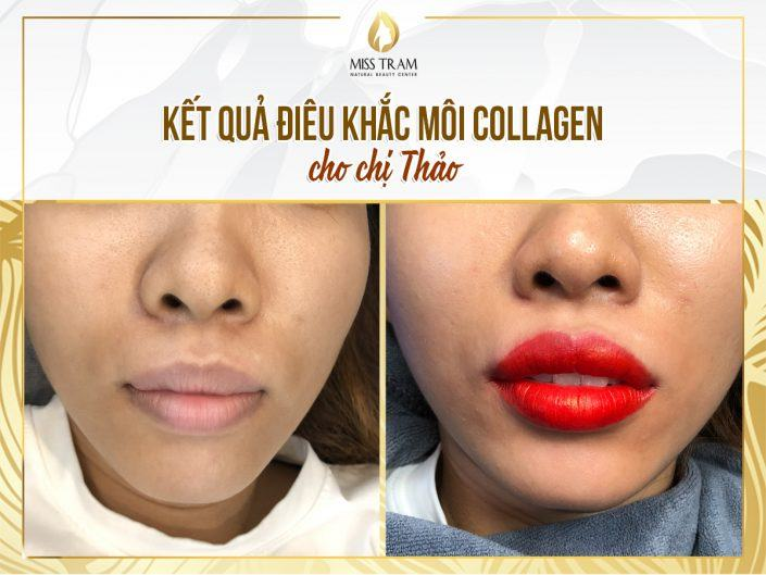 Collagen Remedy And Lip Sculpture Results For Ms. Thao