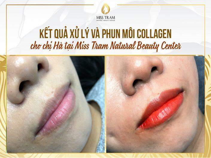Results of Collagen Treatment and Lip Spray For Ms. Ha