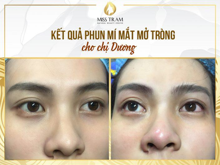 Implementation of Open-Face Eyelid Technology for Ms. Duong