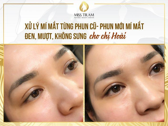 Treating Old Eyelids With Spray - Spraying Smooth, Painless Black Eyelids For Ms. Hoai