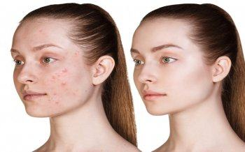 Acne Treatment With Oxy Jet Technology