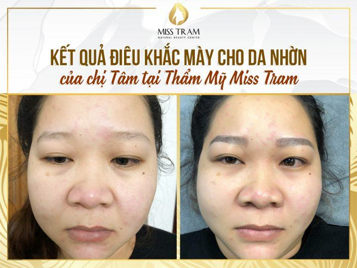 The Result of Sculpting You for Oily Skin of Ms. Tam