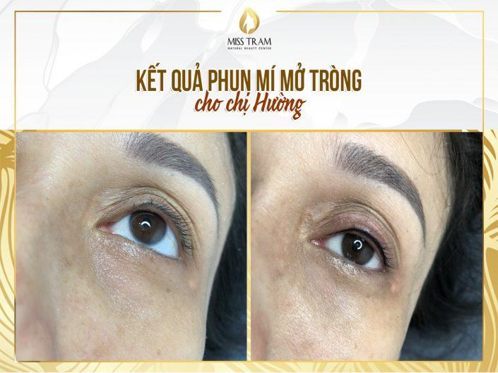 Implementation Results of Open Eyelid Spraying Technology for Ms. Huong