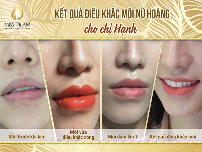 As a result, Ms. Hanh uses technology to sculpt her lips