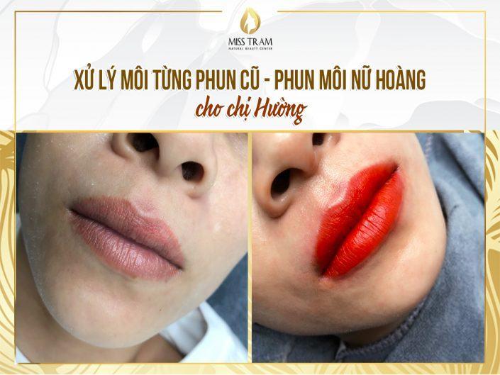 Xử Lý Môi Từng Phun – Điêu Khắc Môi Nữ Hoàng Mới Cho Chị Hường
