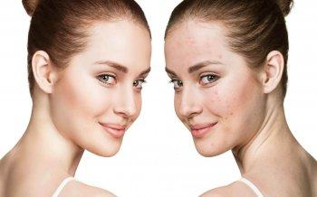 Acne Treatment With Bio Light Technology