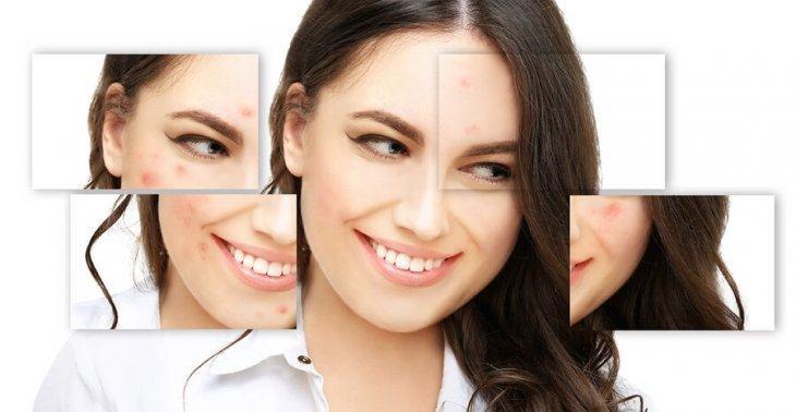 Điều Trị Mụn Bằng Công nghệ Nano Skin Có Thật Sự Tốt