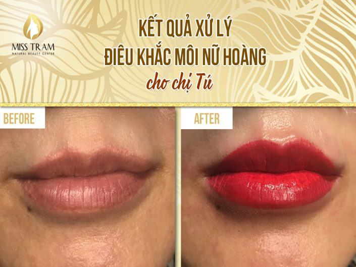Results of Treatment & Sculpture of Queen's Lip For Ms. Tu