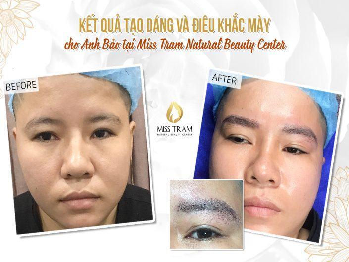 Kết Quả Điêu Khắc Chân Mày Nam Cho Anh Bảo Tại Miss Tram Spa