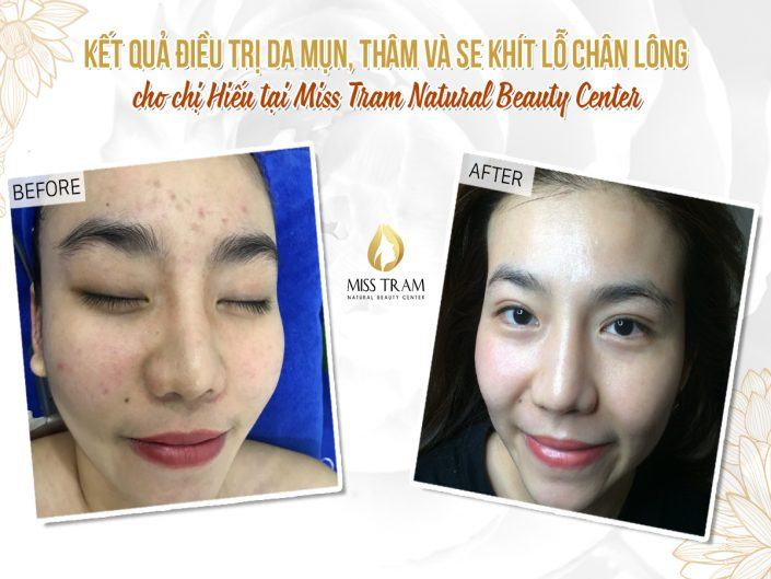 Deep Clean Acne & Tighten Pores After 1 Fractional CO2 Laser