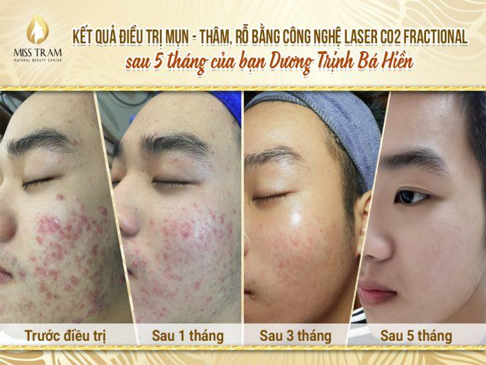 Results of Acne Treatment, Darkening of Anh Hien After 5 Months