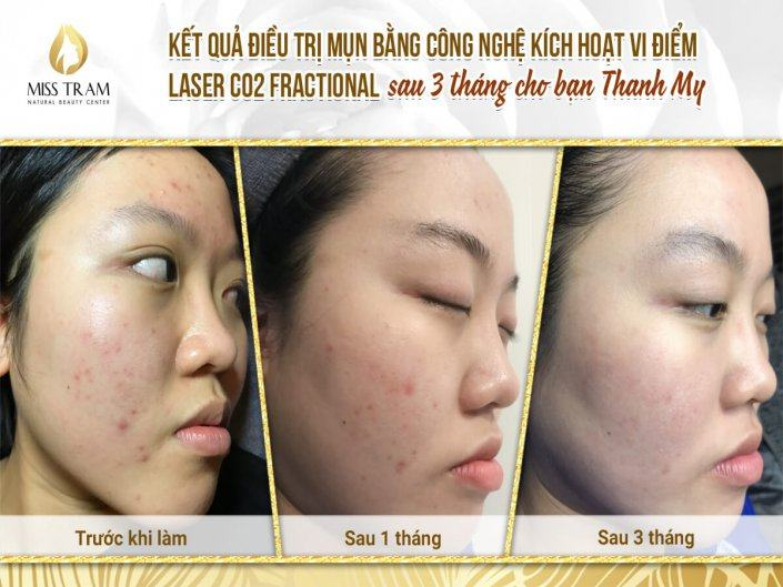 Acne Treatment With Fractional CO2 Laser Activating Technology After 3 Months For You Thanh My