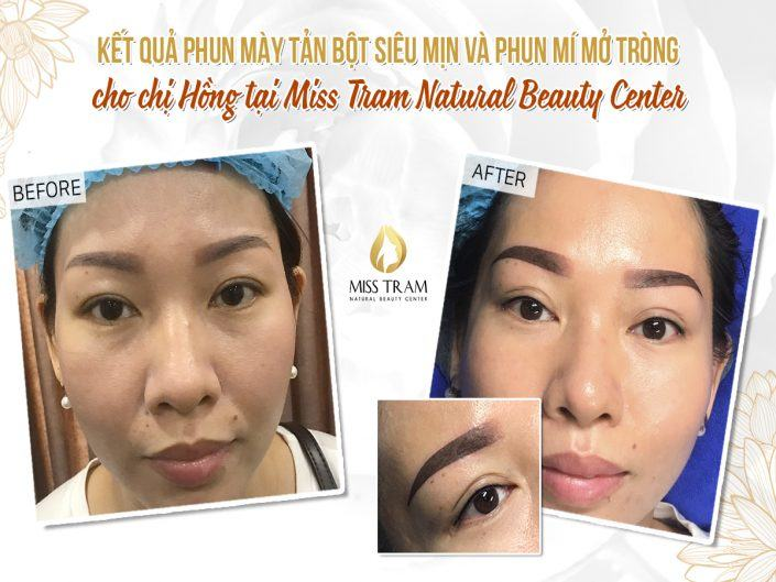 The result of superfine powder powder & Open eyelid spray for Ms. Hong