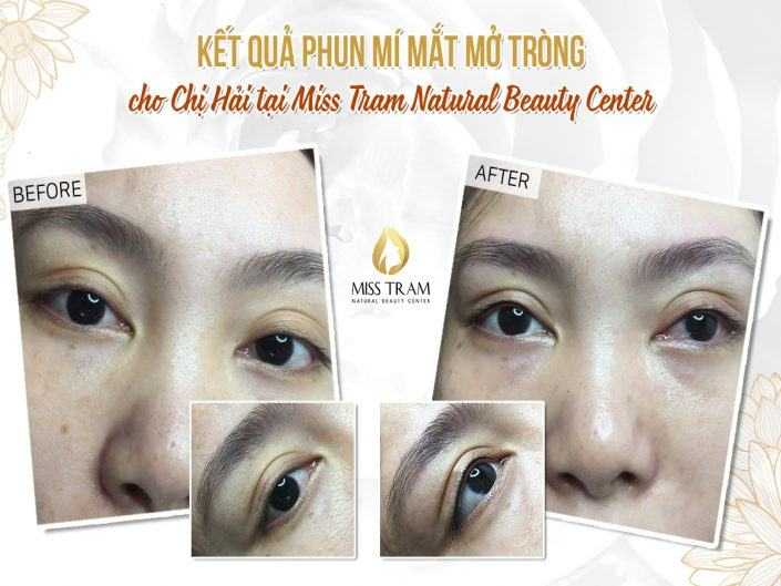 The result of a beautiful, naturally open eyelid spray for Ms. Hai