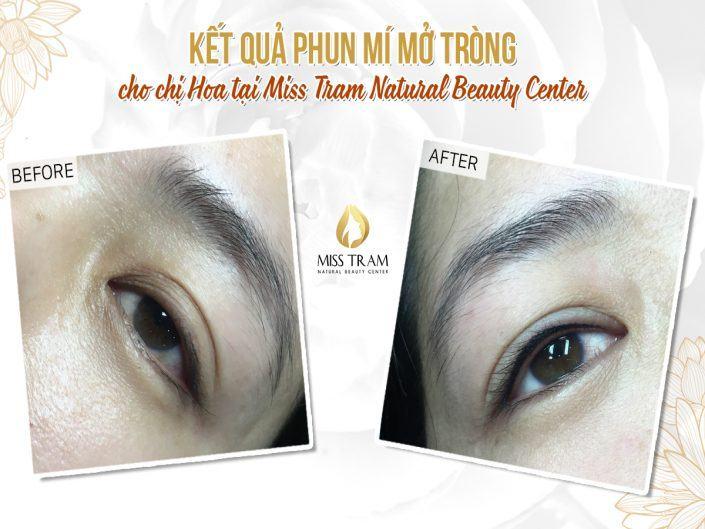 Kết Quả Phun Mí Mắt Mở Tròng Cho Chị Hoa Tại Miss Tram Natural Beauty Center