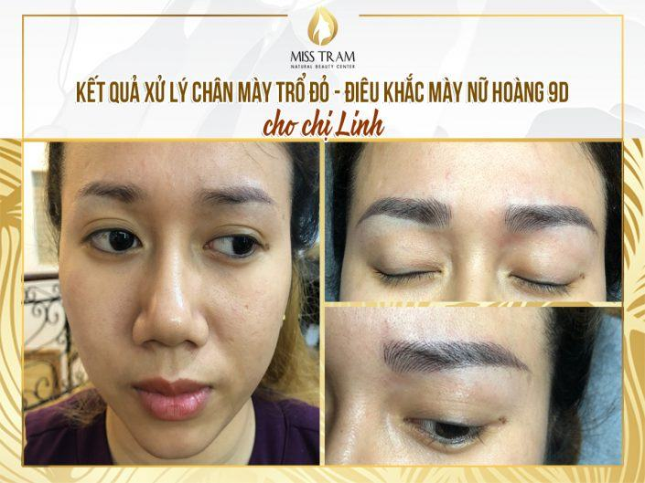 Results of Treatment of Red Eyebrow Sculpting & 9D Queen Sculptor for Ms. Linh