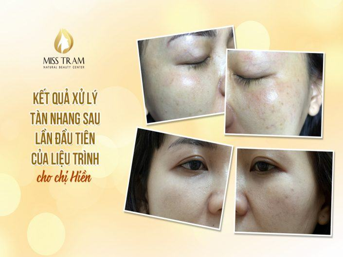 The Result of Ms. Hien's Freckle Treatment Immediately After The First Time Of The Treatment