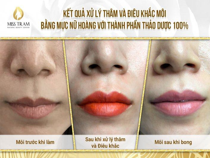 The Result of Deep Treatment & Lip Sculpture for Ms. Hoang Oanh