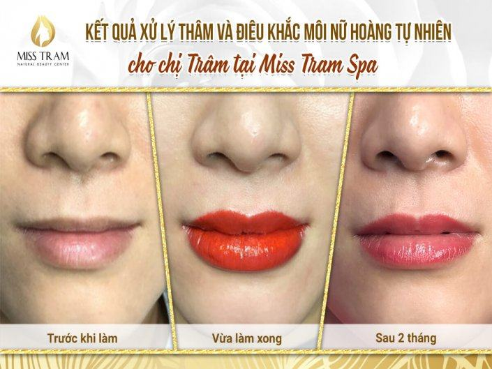 Results Of Treatment And Sculpture Of Queen's Lip For Ms. Tram