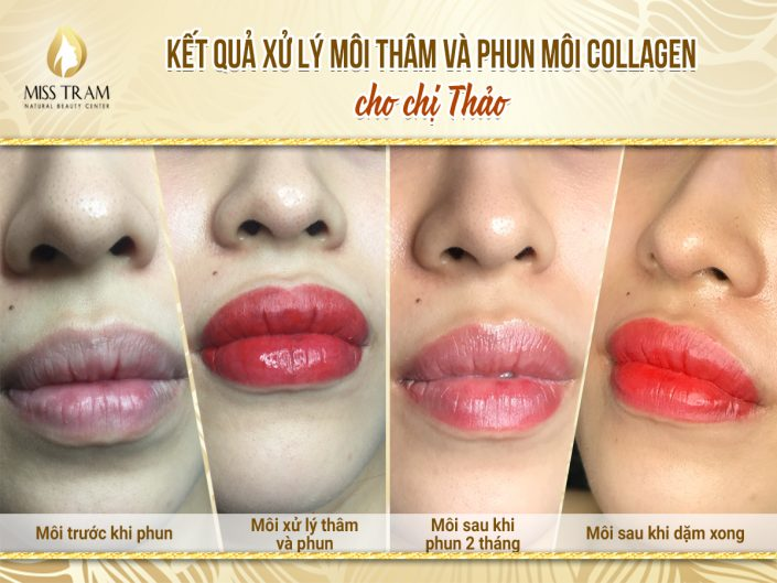 Kết Quả Xử Lý Thâm Và Phun Môi Collagen Cho Chị Thảo Tại Miss Tram Spa