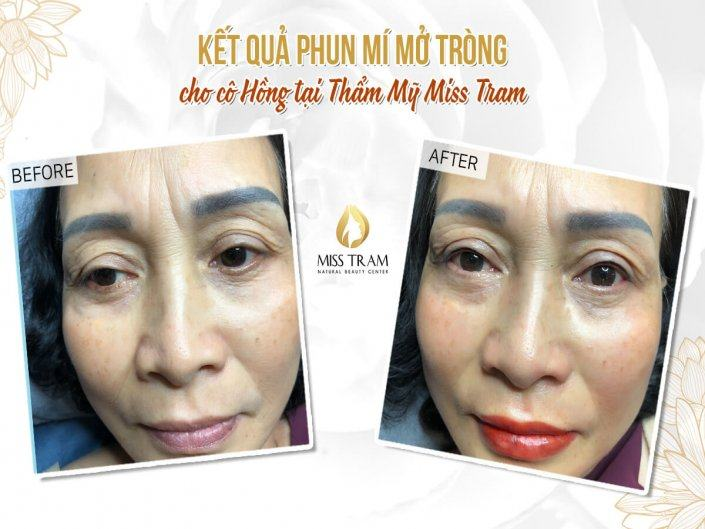 The results of eyelid spraying opened for Ms. Hong
