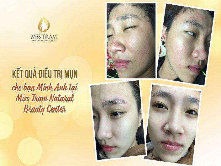 Actual Results of Acne Treatment For Minh Minh Friend