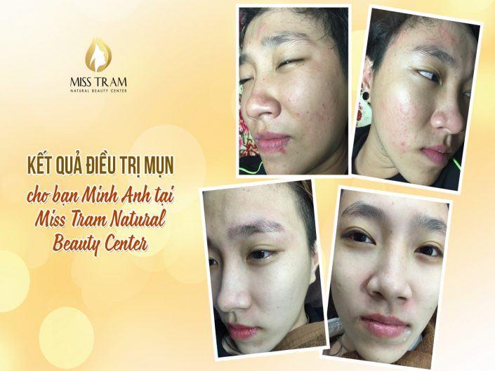 Kết Quả Điều Trị Mụn Cho Bạn Minh Anh Tại Miss Tram Natural Beauty Center