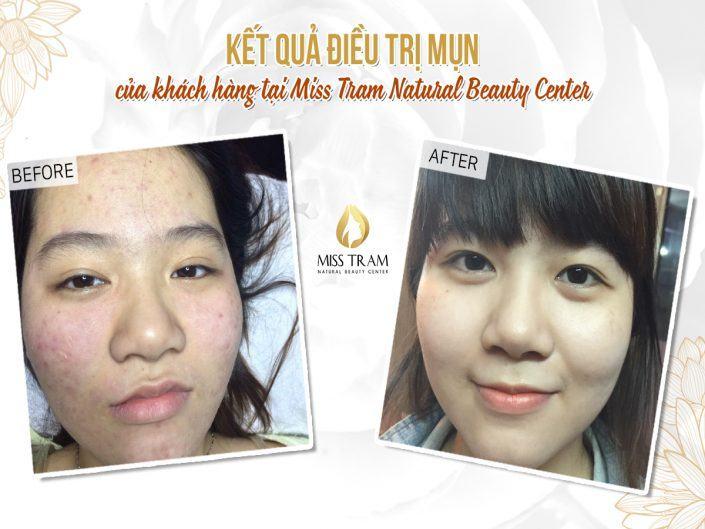 Kết Quả Điều Trị Mụn Của Khách Hàng Tại Miss Tram Natural Beauty Center