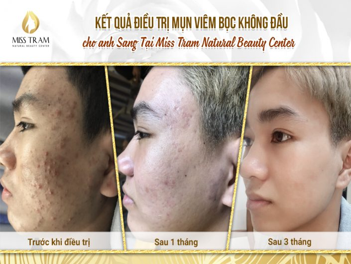 Outcome Treatment for Head Wrap Acne for Anh Sang