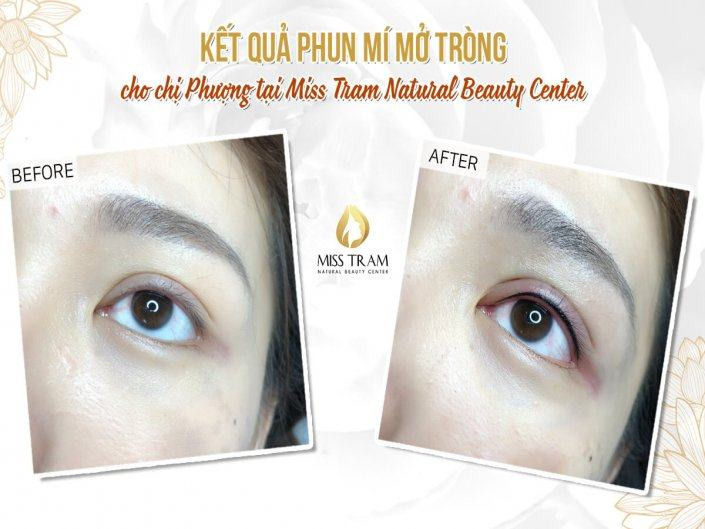 Beauty Result With Open Eyelid Spray For Ms. Phuong