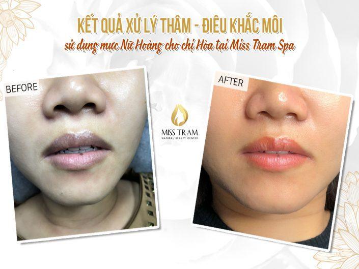 Xử Lý Thâm Và Điêu Khắc Môi Nữ Hoàng Cho Chị Hòa Tại Miss Tram Natural Beauty Center