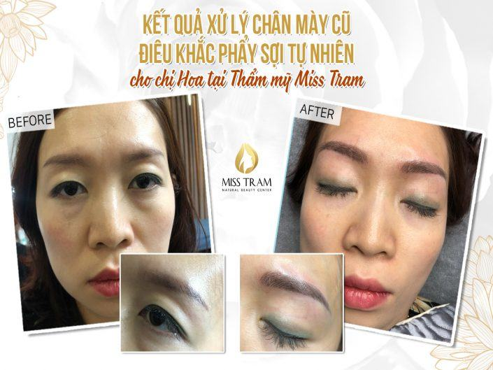 Result of Eyebrow Treatment and Sculpture For Ms. Hoa