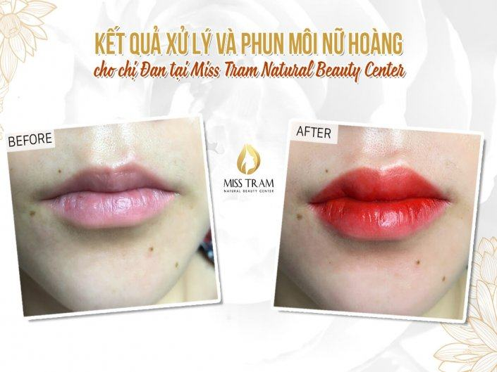 Results of Treatment And Spraying Queen's Lip For Ms. Dan