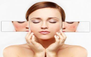 When Skin Whitening For Sensitive Skin What To Remember