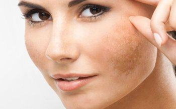 Revealing the Secret of Restoring Skin to Melasma