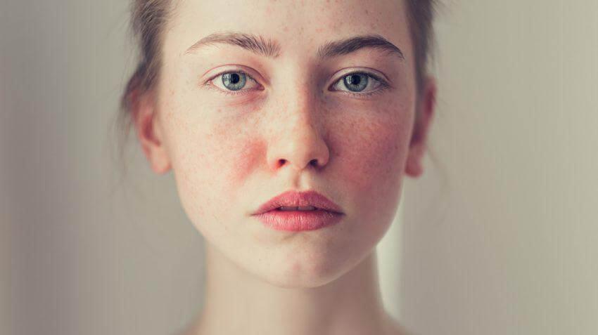 cách chăm sóc da mặt khi bị di ứng