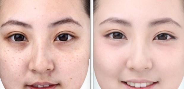 mặt nạ thải độc chì cho da
