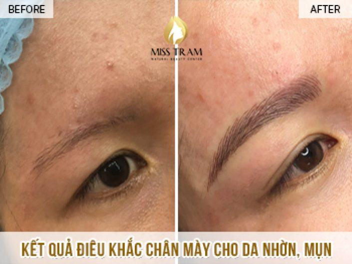Sculpting Eyebrows for Oily Skin - Ms Phuong's Acne