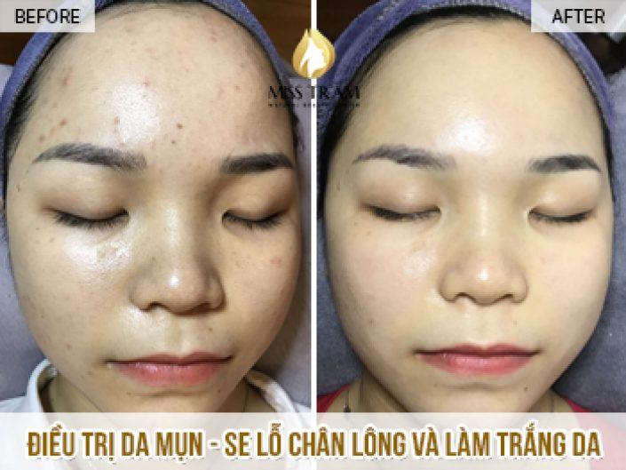 Acne Skin Treatment - Tighten Pores And Whiten Your Skin Thuy Duong