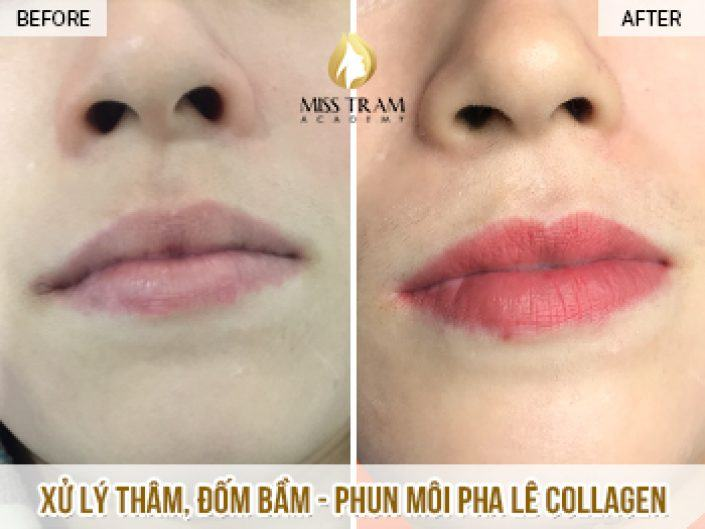Treatment Of Beauty And Treatment Of Naturally Collagen Crystal Collagen For Ms. Thi