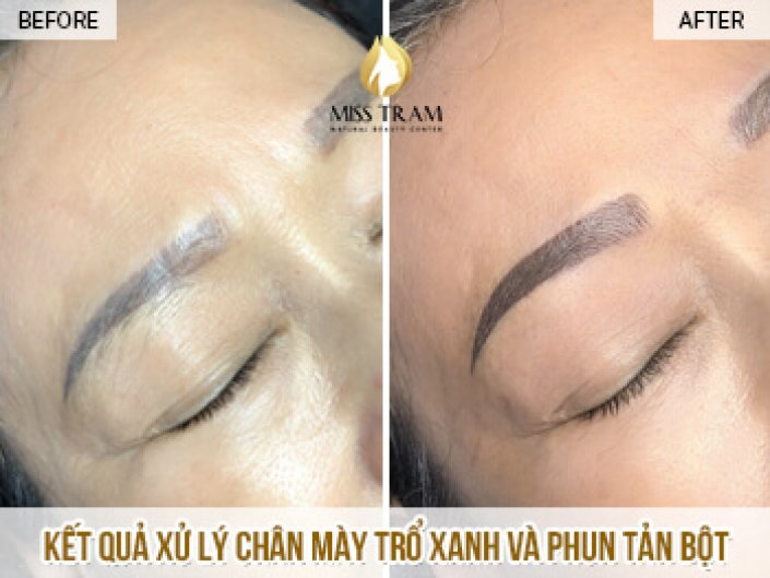 Treatment of Blue Eyebrows And Spraying Powder For Ms. Loan