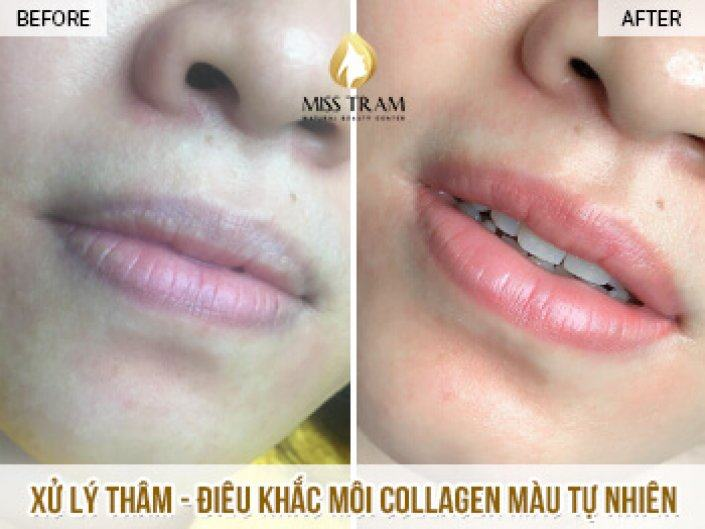 The Result After The First Collagen Treatment and Lip Sculpture For Ms. Uyen