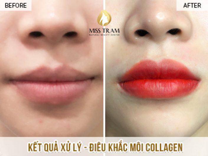 Xử Lý Và Điêu Khắc Môi Collagen Cho Bạn Trúc Tại Miss Tram Natural Beauty Center