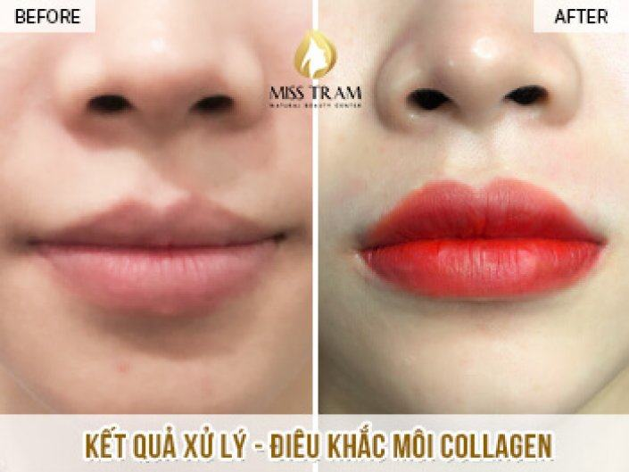 Processing And Sculpting Lips Collagen For You Truc
