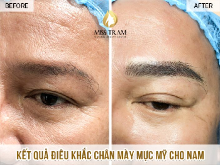 Điêu Khắc Chân Mày Nam Sử Dụng Mực Mỹ Cho Anh Minh Tại Miss Tram Natural Beauty Center